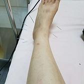 为了摸索脚踝扭伤的最佳康复方案,我把所有方式都折腾了个遍